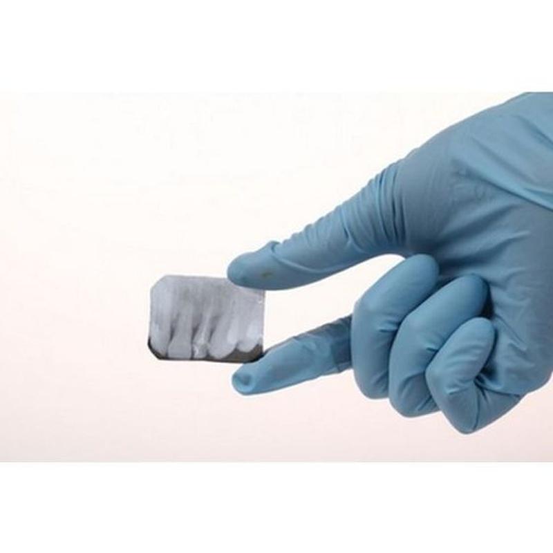 Radiografía dental: Servicios de Clínica Dental Casimiro Sinde Pereiro