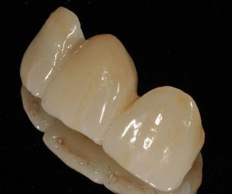 Bracketts: Tratamientos dentales de Clínica Dental Dres. Nuñez García