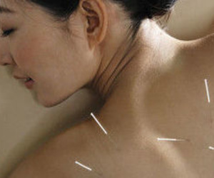 Medicina Tradicional China - Tratamiento de Acupuntura