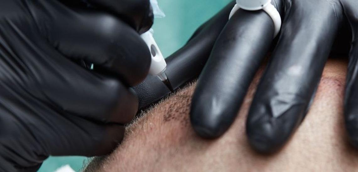 Micropigmentación para hombres en Pamplona para solucionar problemas estéticos