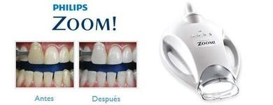 La Importancia del blanqueamiento dental