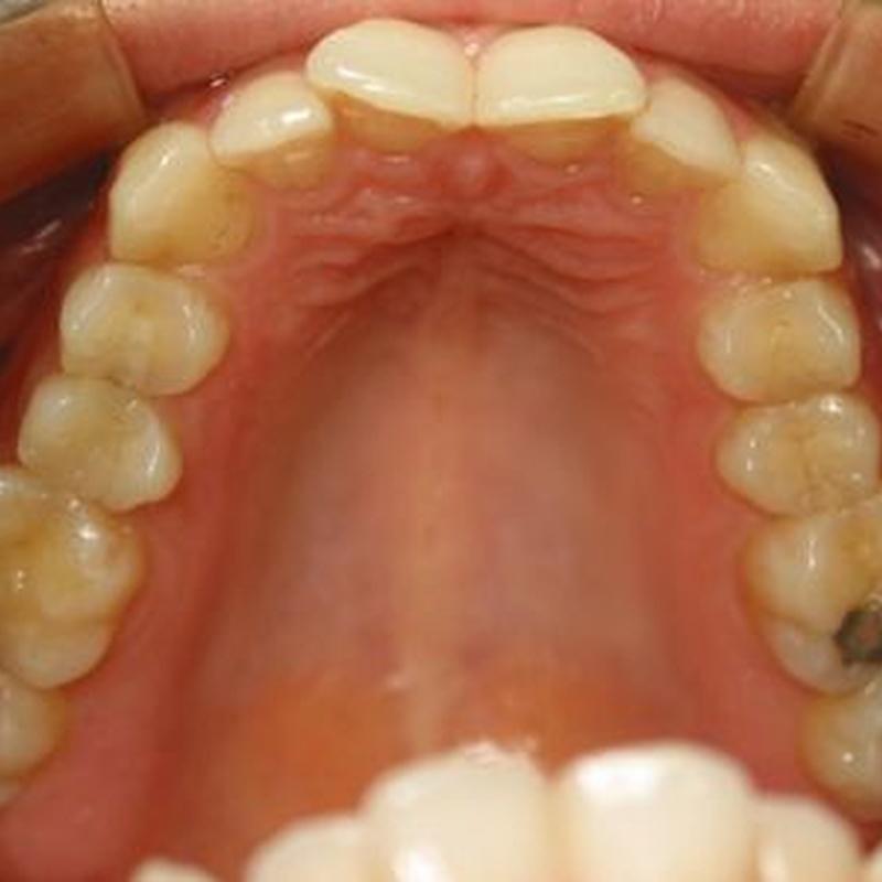 Caso 1: Tratamientos  de Centro Odontológico La Eliana
