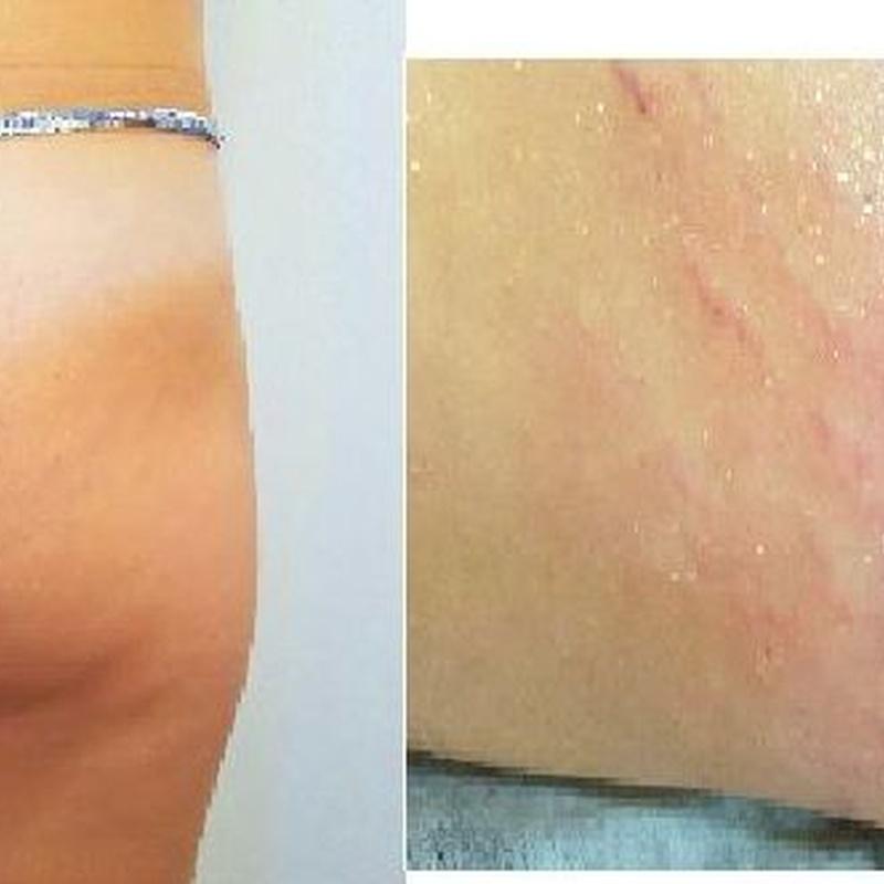 Tratamiento RXZ y radiofrecuencia fractal: CATÁLOGO de Estética Avanzada Juana Mª Munuera