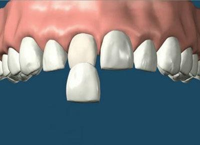 Carrilas: Especialidades de Clínica Dental Medicalia Fuenlabrada, tus dentistas de confianza