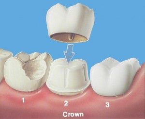 Coronas o Fundas: Especialidades de Clínica Dental Medicalia Fuenlabrada, tus dentistas de confianza