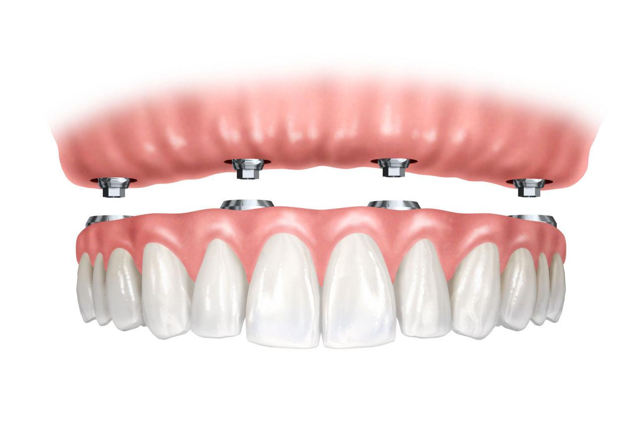 Prótesis removible: Especialidades de Clínica Dental Medicalia Fuenlabrada, tus dentistas de confianza