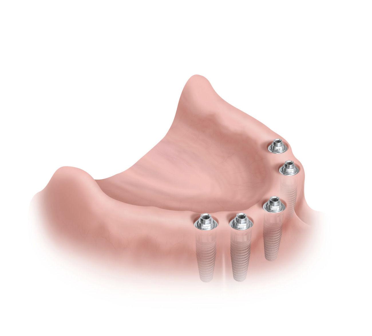 Protesis sobre implantes: Especialidades de Clínica Dental Medicalia Fuenlabrada, tus dentistas de confianza