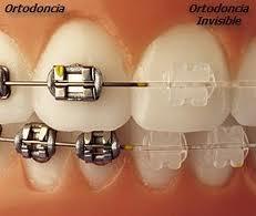 Ortodoncia fija: Tratamientos de Dental Icaria, S.L.