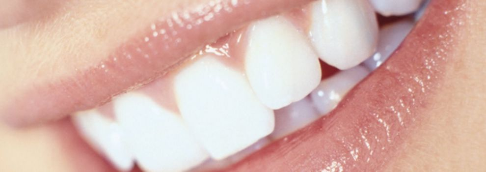 Implantes dentales en Mallorca