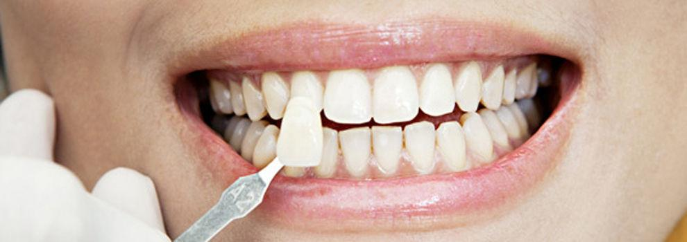 Dentistas en Donostia | Clínica Dental Larumbe y Jiménez