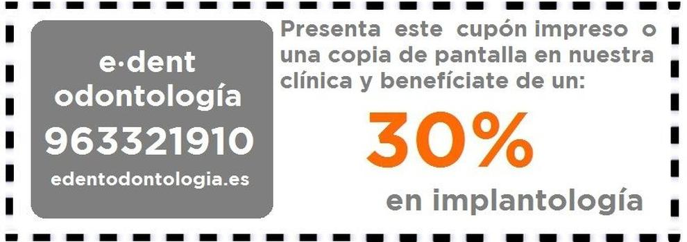Clínicas dentales en Valencia | e·dent odontología