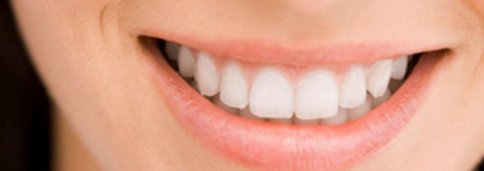 Estética dental en Coslada | Clínica Dental de la Dra. Silvia Conca Chiumello