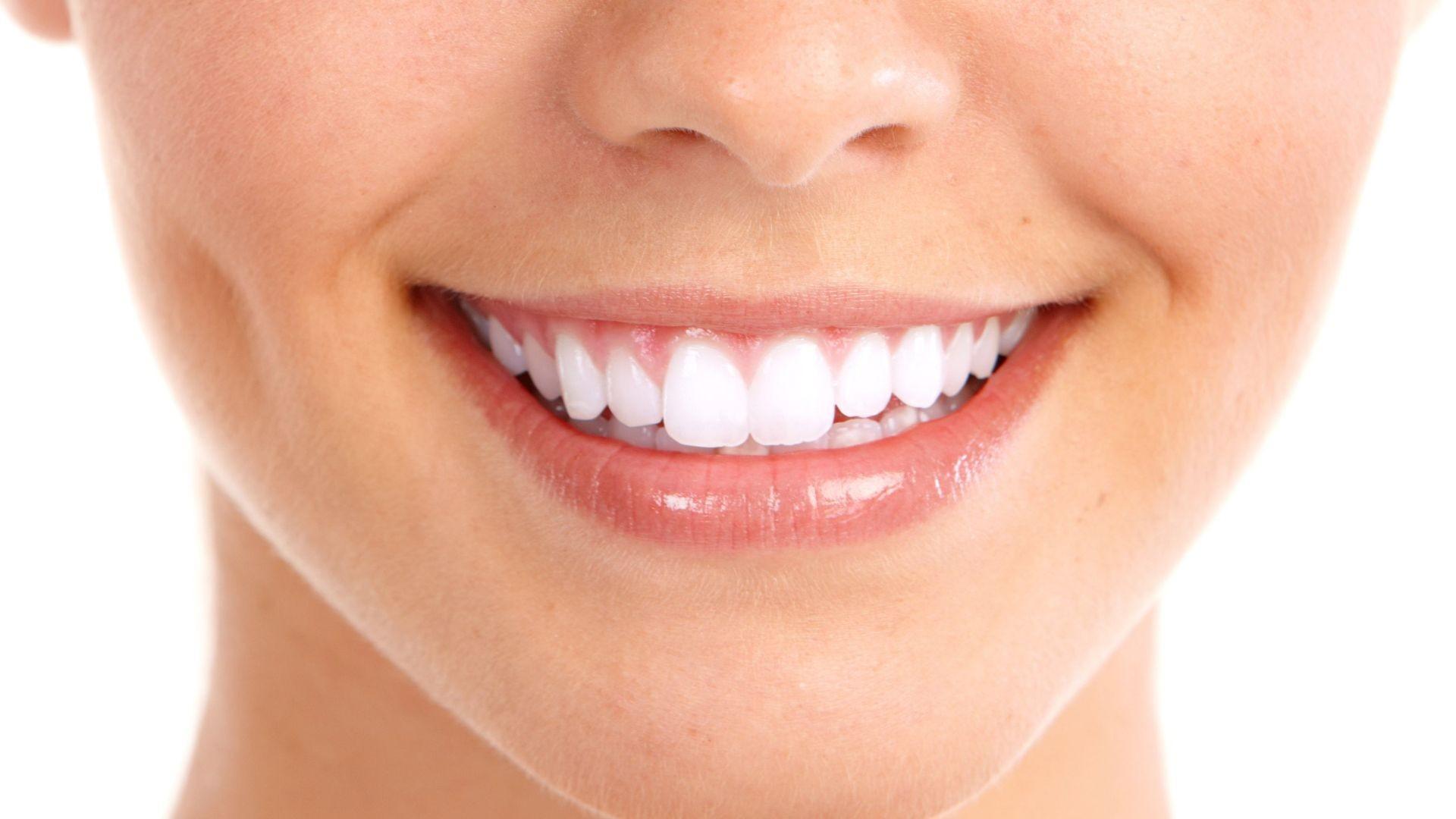 sonrisa-vitaldent