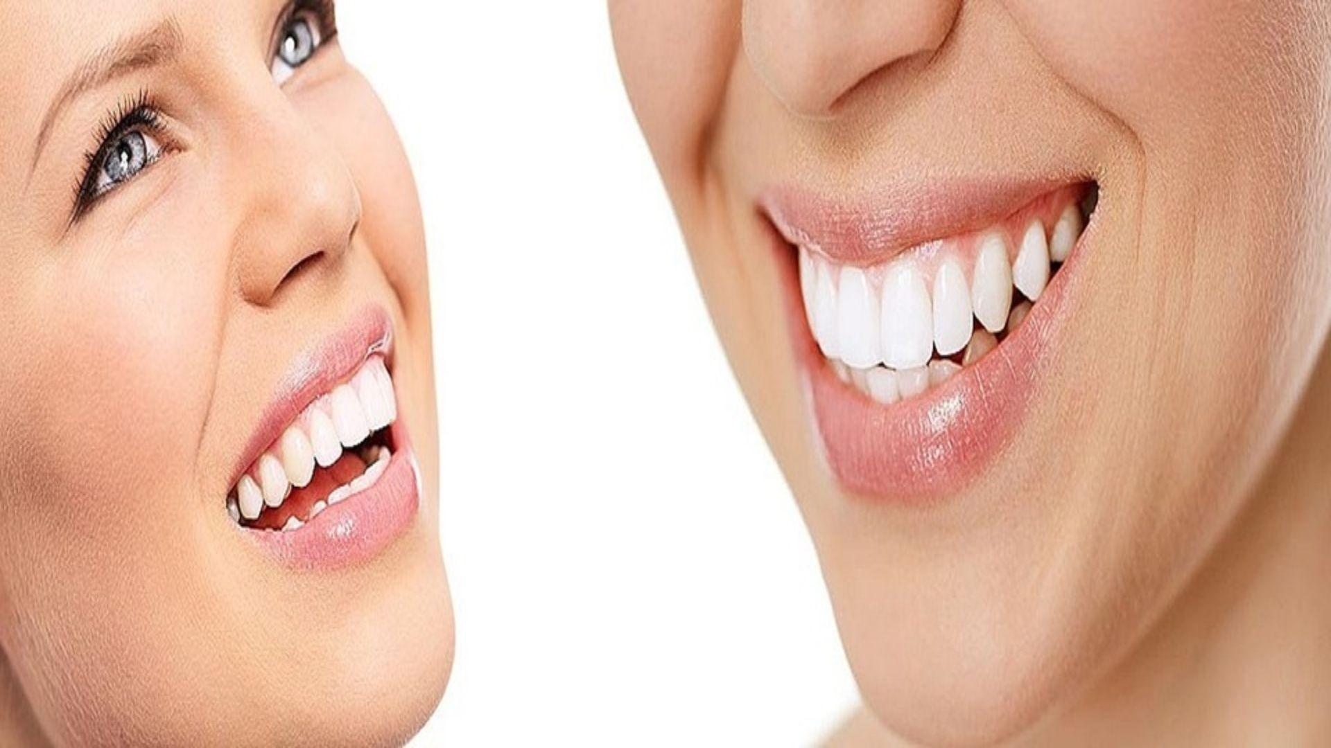 Dentistas en Ermua