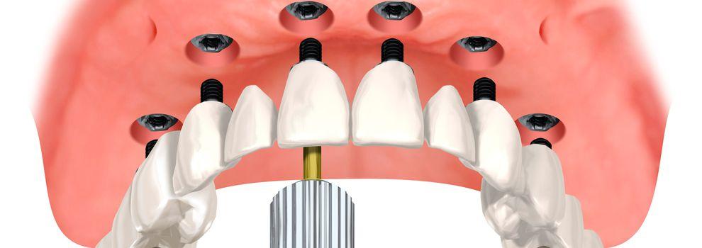 Oferta implantes dentales Carabanchel Madrid