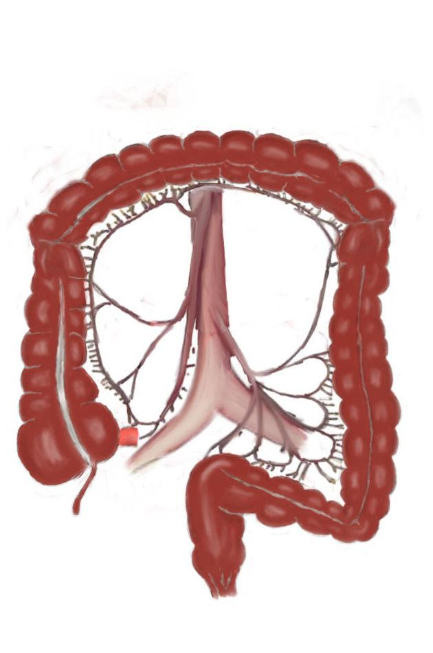 ¿Síntomas del colon irritable?