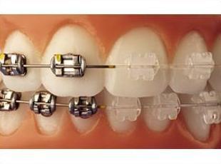 Ortodoncia niños: Tratamientos de Clínica Dental Francisco Javier García Jerónimo