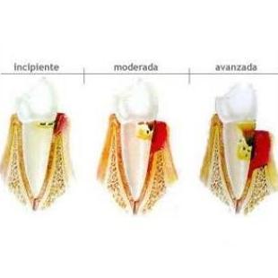 Periodoncia: Tratamientos de Clínica Dental Francisco Javier García Jerónimo