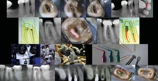 Tratamiento de todo tipo de problemas dentales en Motril