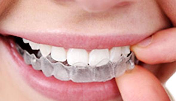 Invisalign: Tratamientos Dentales de Clínica Dental Getafe