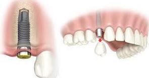 Implantes dentales baratos Madrid