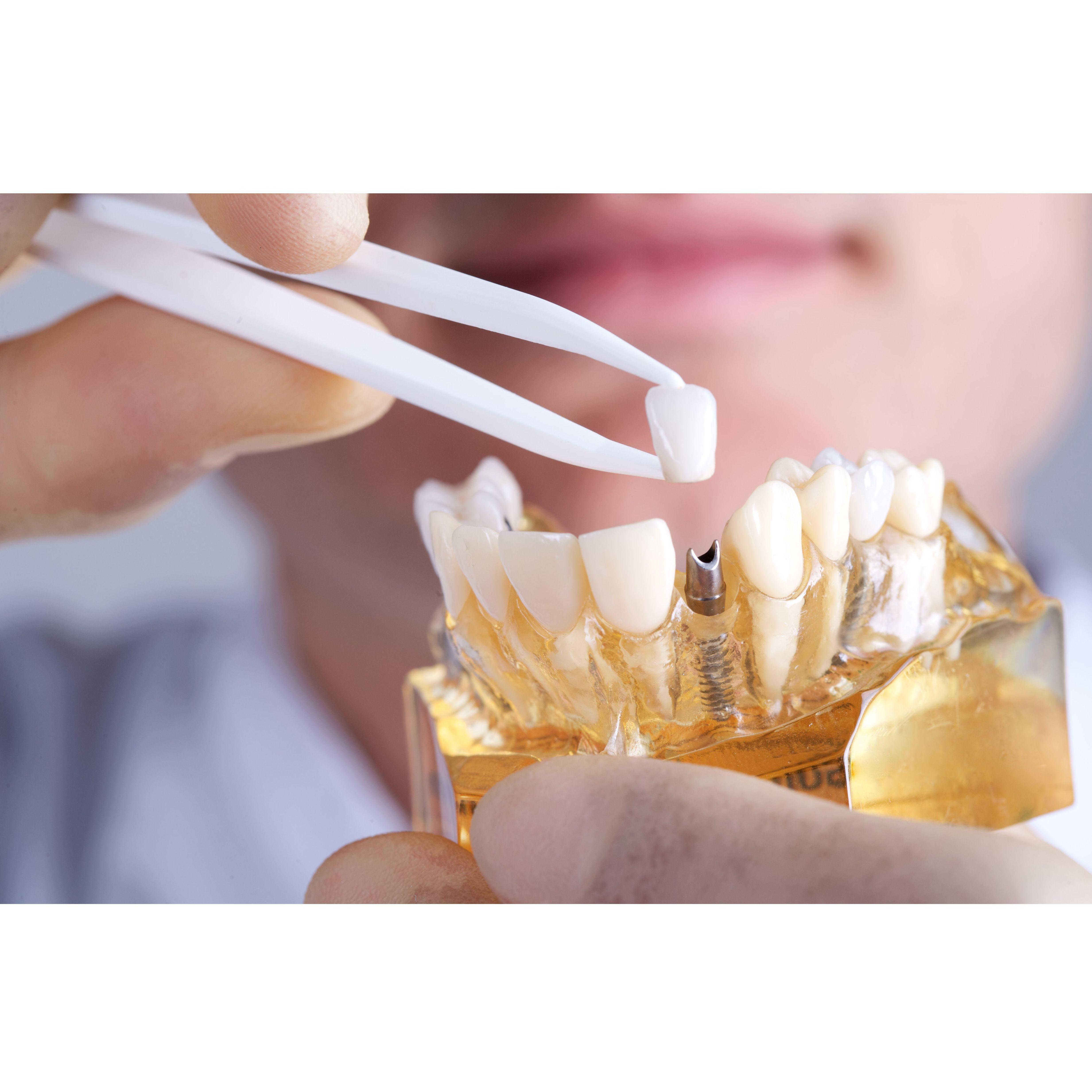 Implantes dentales: Tratamientos Dentales de Clínica Dental Getafe