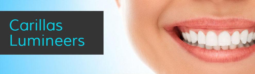 Carillas Lumineers : Tratamientos Dentales de Clínica Dental Getafe