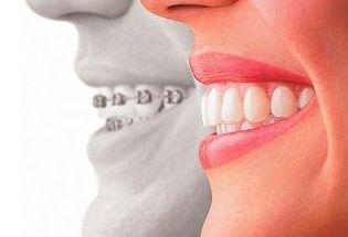 Removible: Tratamientos Dentales de Clínica Dental Getafe