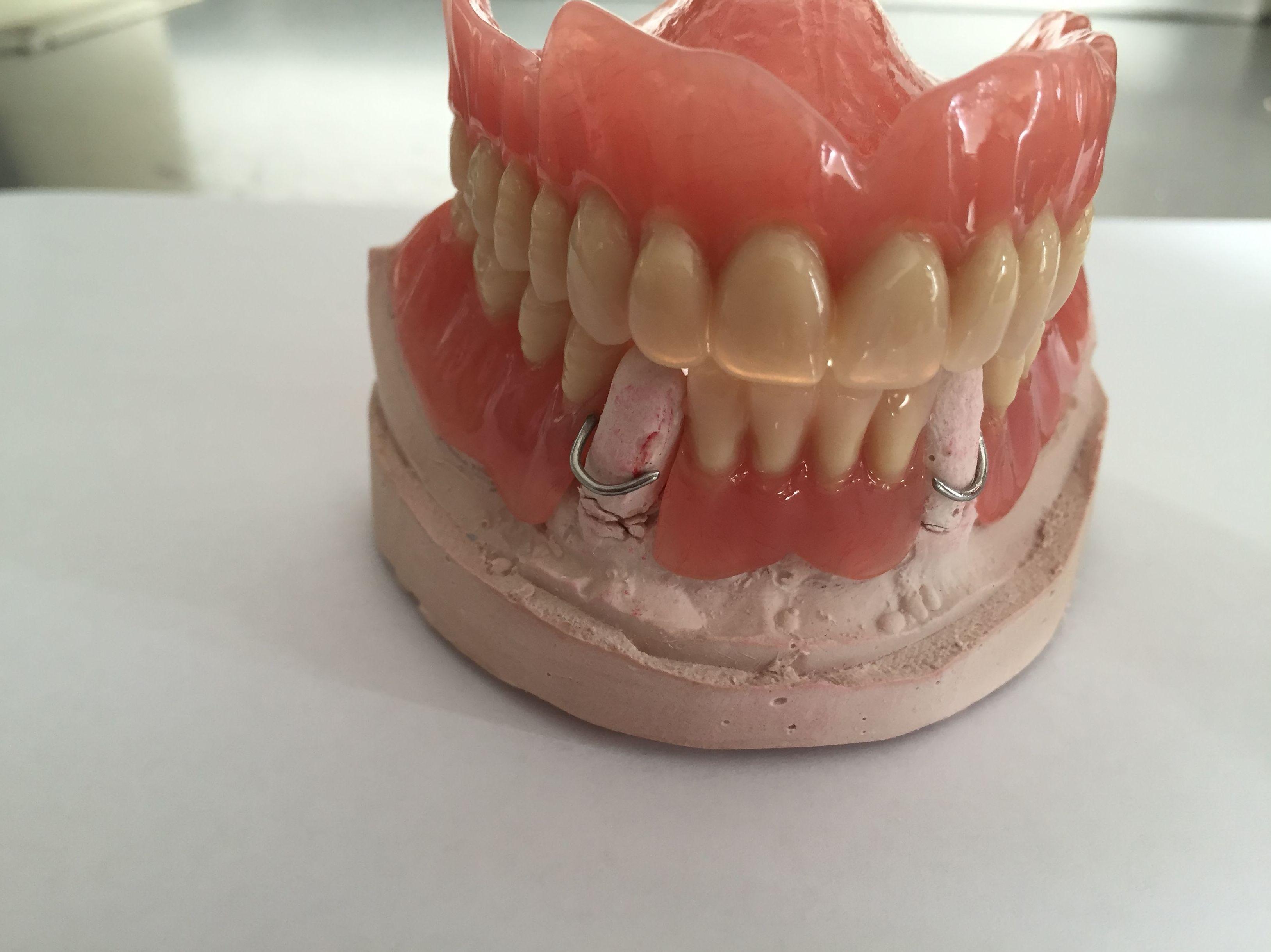 Prótesis de resina: Tratamientos de CARLOS CERÓN RODRÍGUEZ