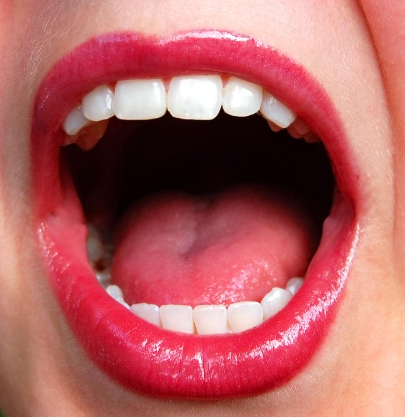 blanqueamientos,prótesis fija,ortodoncia invisible