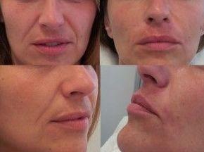 Eliminación de arrugas