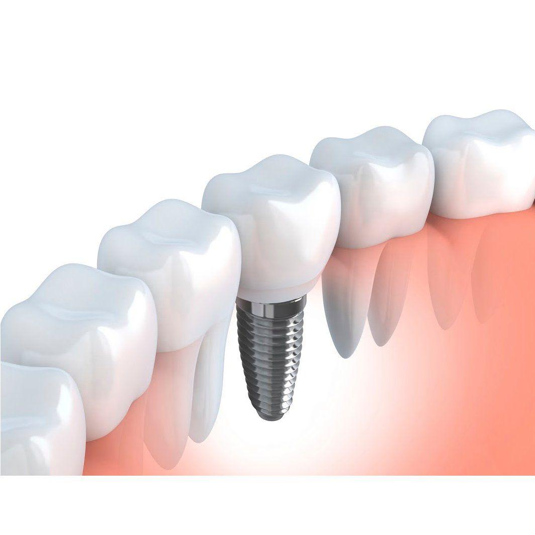 Implantes: Tratamientos dentales de Centro Dental Sant Fost