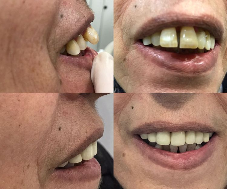 Tratamientos dentales en Sant Fost