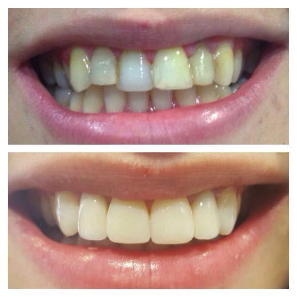 Estética dental en Sant Fost de Campsentelles