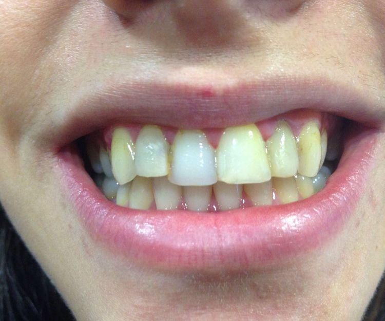 Después de tratamiento dental