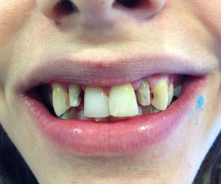 Antes de tratamiento dental