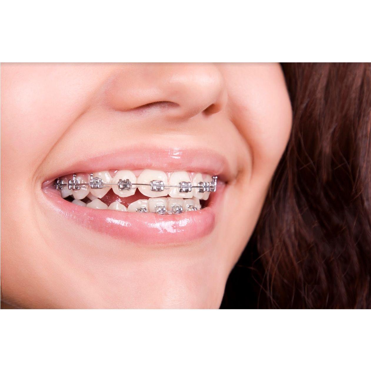 Ortodoncia: Tratamientos dentales de Centro Dental Sant Fost