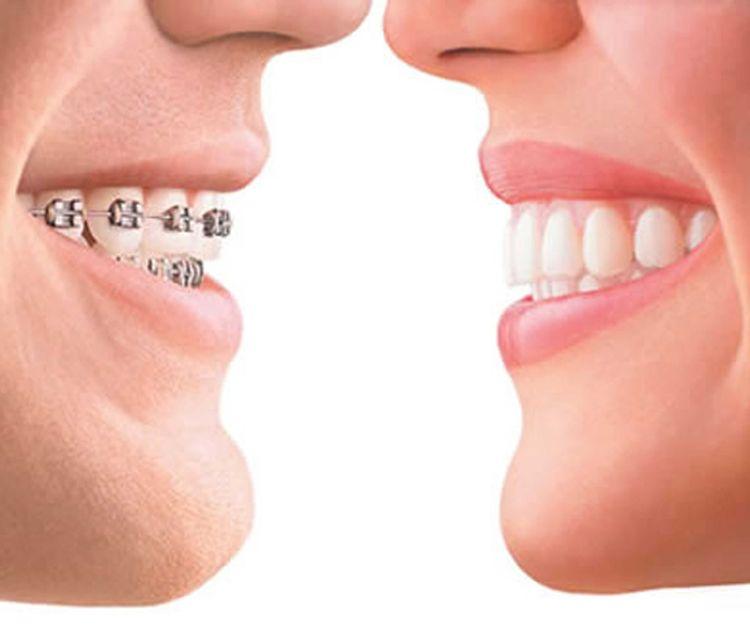 Ortodoncias en Sant Fost