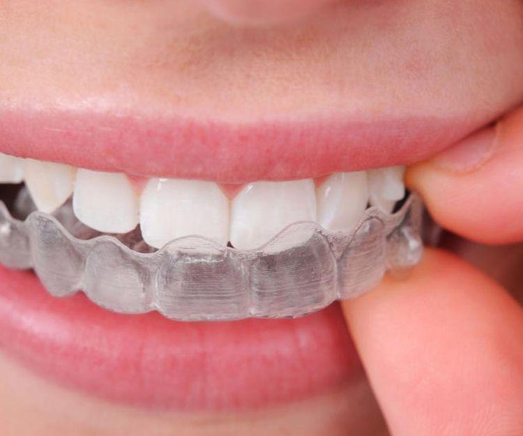Ortodoncia invisible en Sant Fost