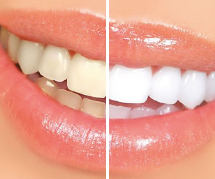 Blanqueamiento dental en Sant Fost