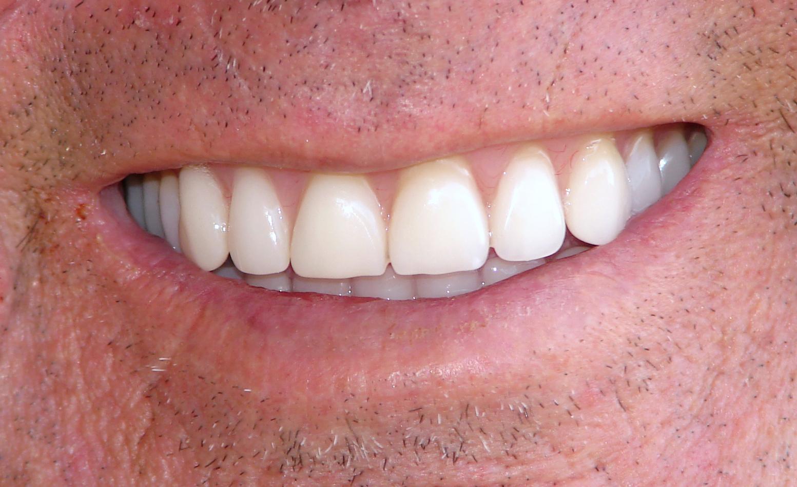 Foto 5 de Dentistas en Córdoba | Clínica Dental Dr. Marzo Martínez