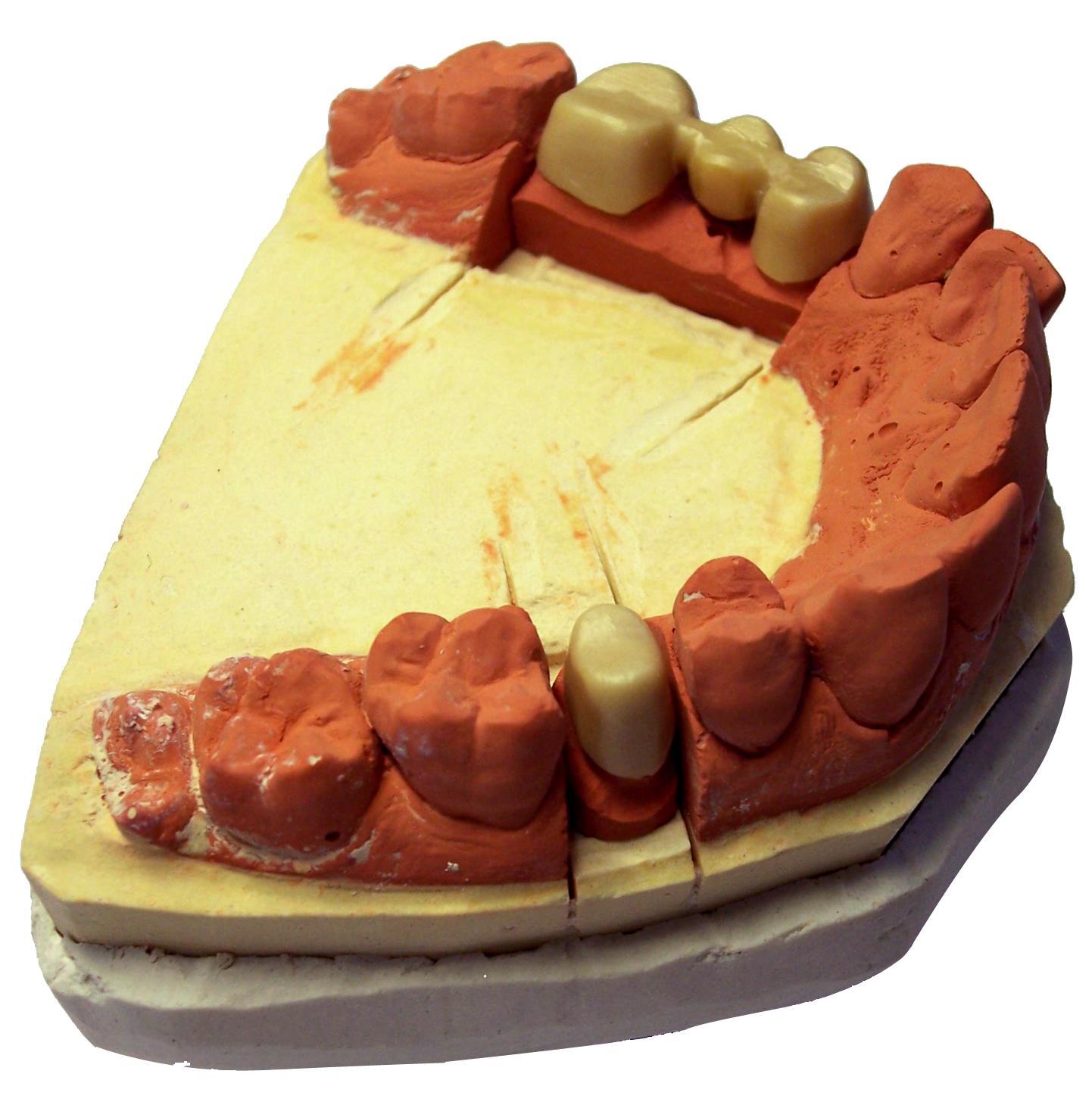 Prótesis: Tratamientos de Clínica Dental Dr. Marzo Martínez