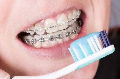 La importancia de cepillarse los dientes con ortodoncia