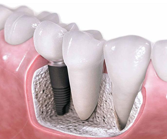 Implantes de titanio: Servicios de Clínica Dental Dr. Lorenzo González Cueva