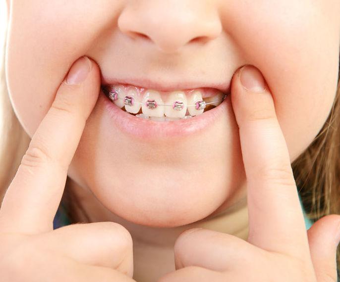 Ortodoncia infantil: Servicios de Clínica Dental Dr. Lorenzo González Cueva