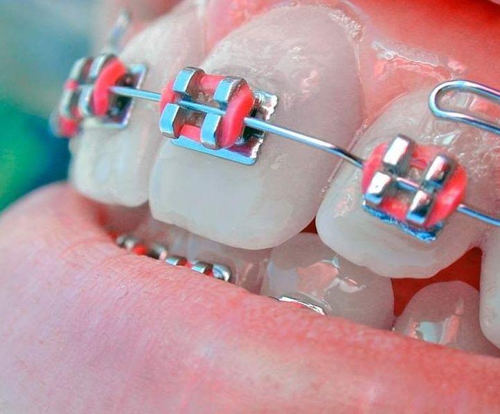 Ortodoncia en Vaklencia