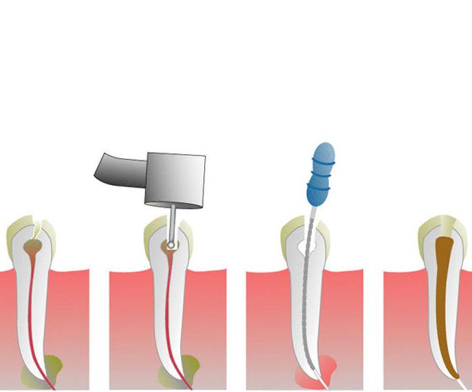 Endodoncia en adultos