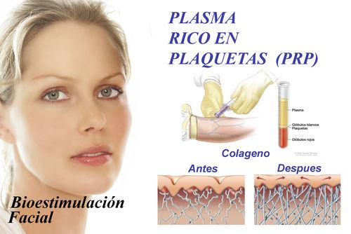 Plasma rico en plaquetas (Hidratación y Capilar): Tratamientos y Productos de Odontología Integral Fernando Román