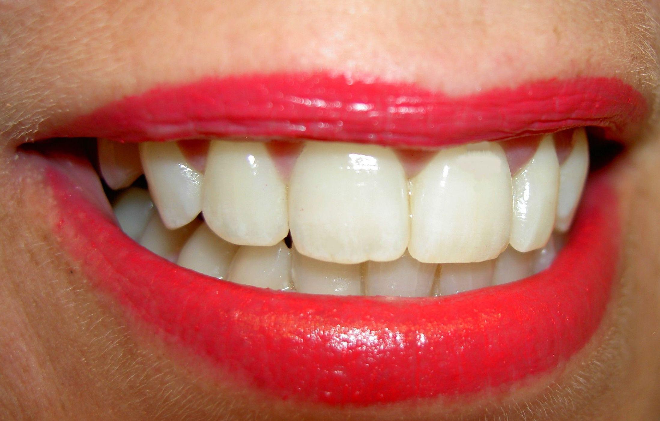 Carillas dentales de porcelana en Santiago de compostela