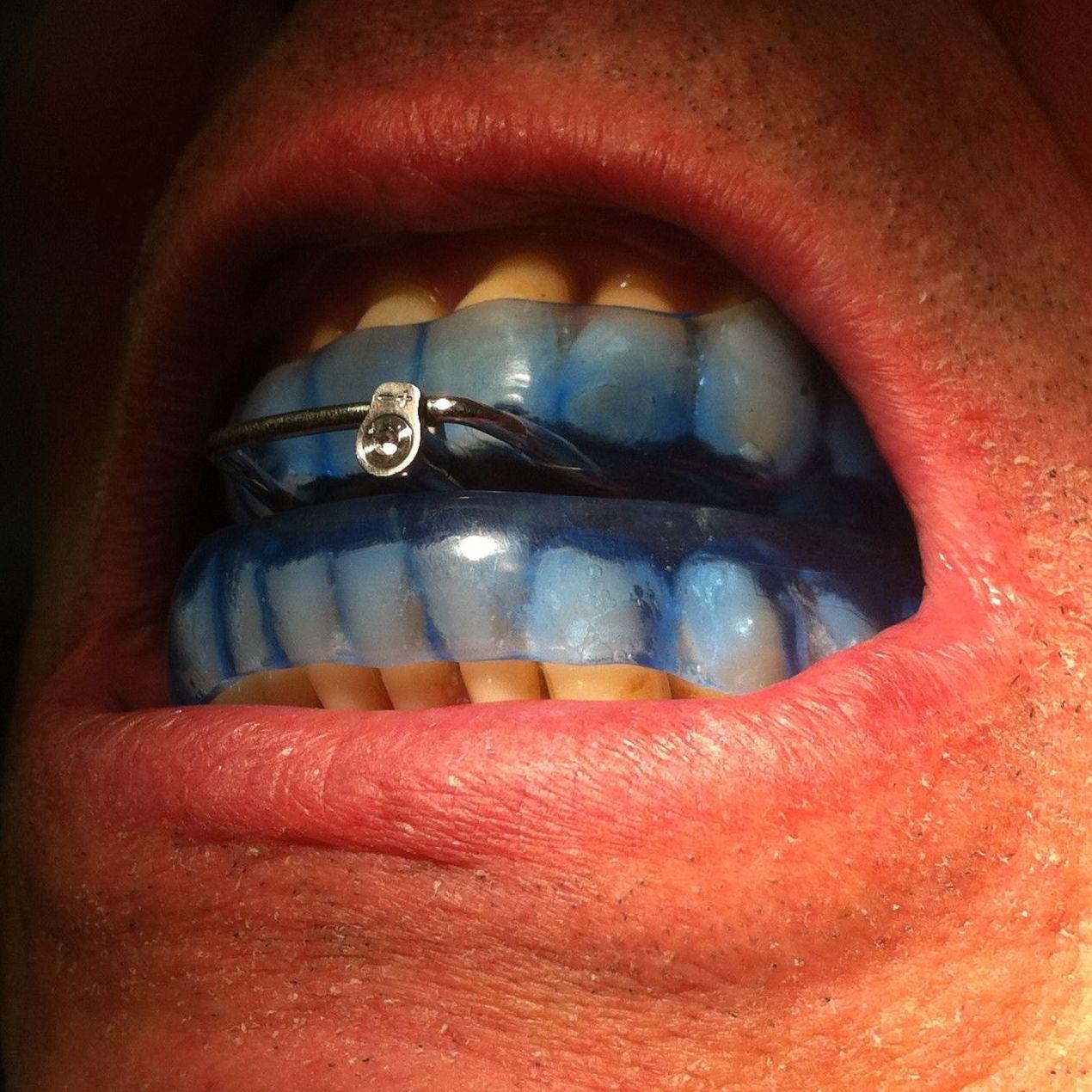 foto dam,dispositivo de avance mandibular,D.A.M,apnea del sueño,antirronquidos,